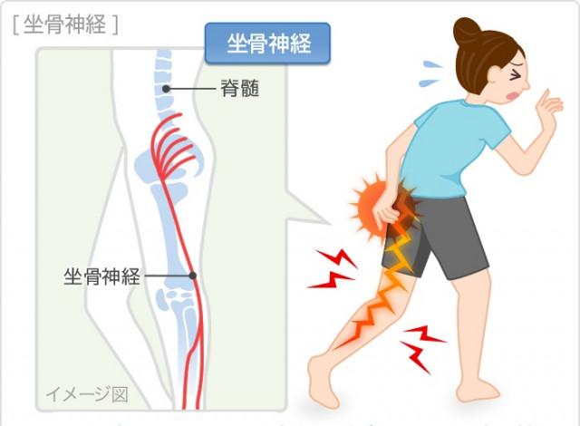 上尾で坐骨神経痛治療が得意なふじの整骨鍼灸院