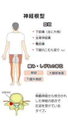脊柱管狭窄症が得意なふじの整骨鍼灸院