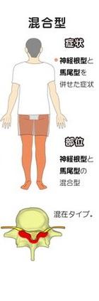 上尾のふじの整骨鍼灸院で脊柱管狭窄症の治療