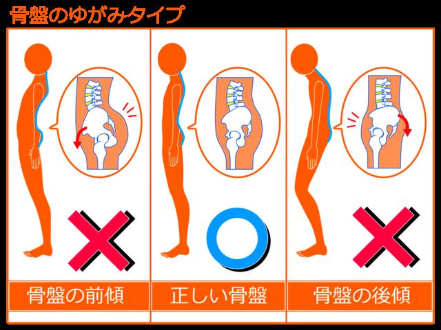 上尾のふじの整骨鍼灸院で腰痛改善